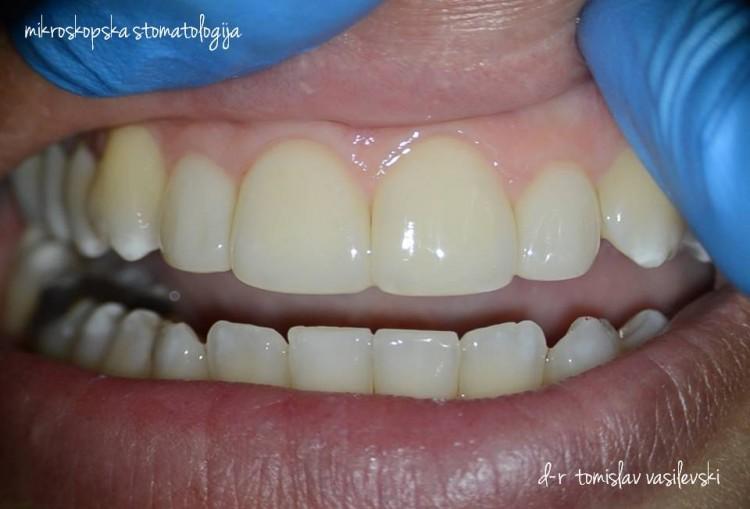 Современо естетско пломбирање на предни заби