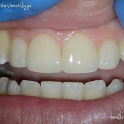 Микроскопско естетско пломбирање на предни заби – Injection Molding