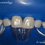 пломбирање на заби