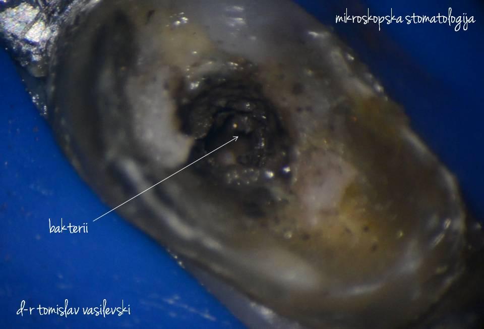 лекување на заби ендодонција д-р томислав василевски d-r tomislav vasilevski