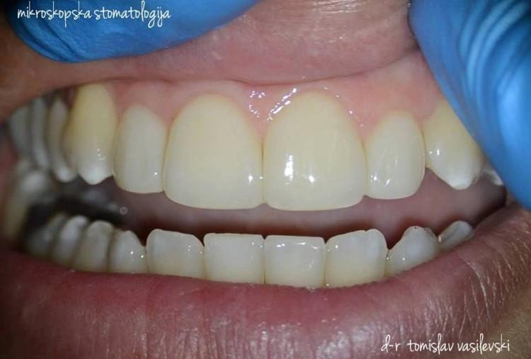 Микроскопско естетско пломбирање на предни заби без стружење!